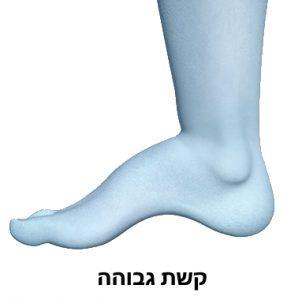 רגל עם קשת גבוהה