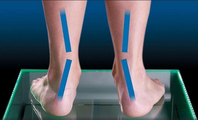 בדיקת כף רגל שטוחה - פלטפוס